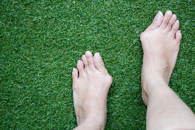 Hallux: causes, symptoms and treatment