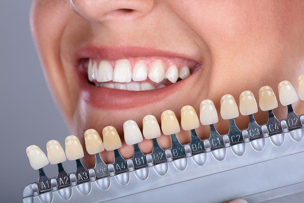 Dental Implant and Teeth Make the World Go Round