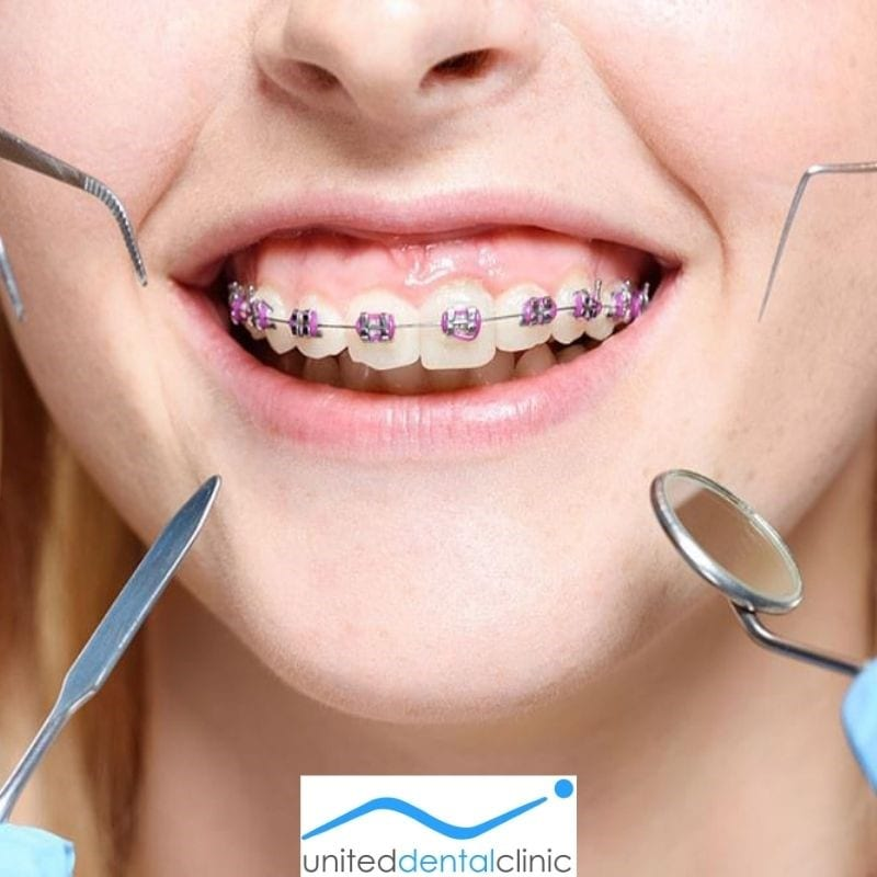 Difference between the Dentist and Orthodontist