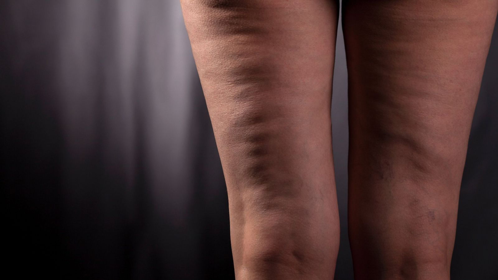 Cellulite its Effect On Your Personality
