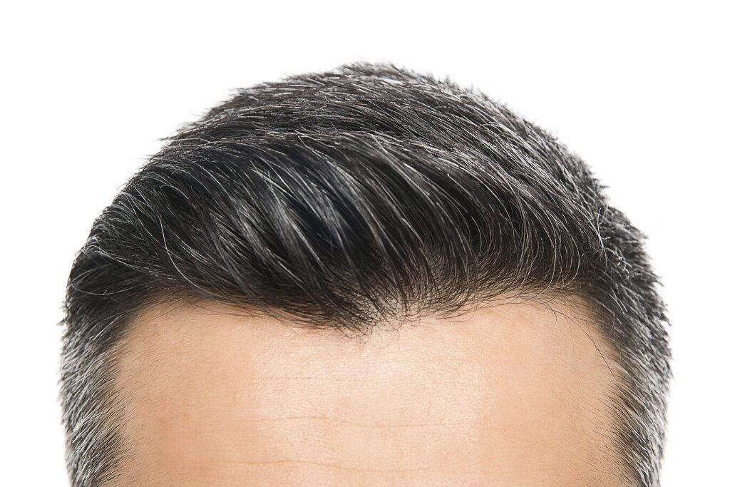 What are hair transplants and grafting? How much is 800 grafts of hair?