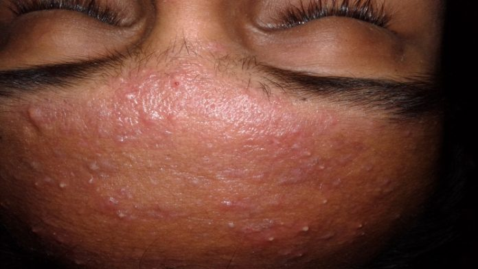 Kinds Of Acne And Their Special Treatment