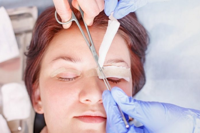 Eyelid Surgery Recovery: 5 Top Things You Can Expect
