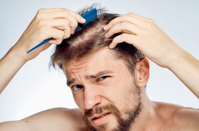 Platelet Rich Plasma for Hair Loss: Everything You Should Know